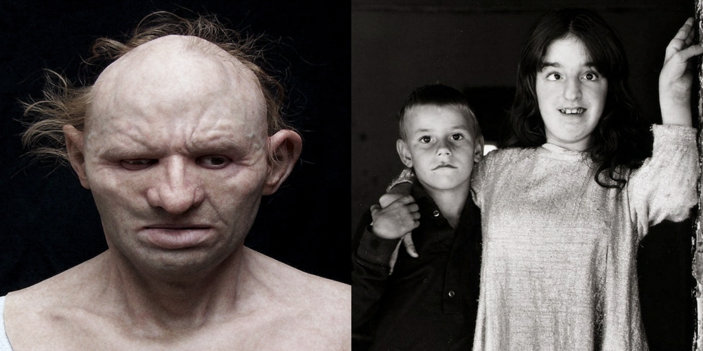 15 Haunting Pics Of Inbred Kids