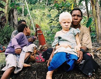 Woman holding a boy with albinism